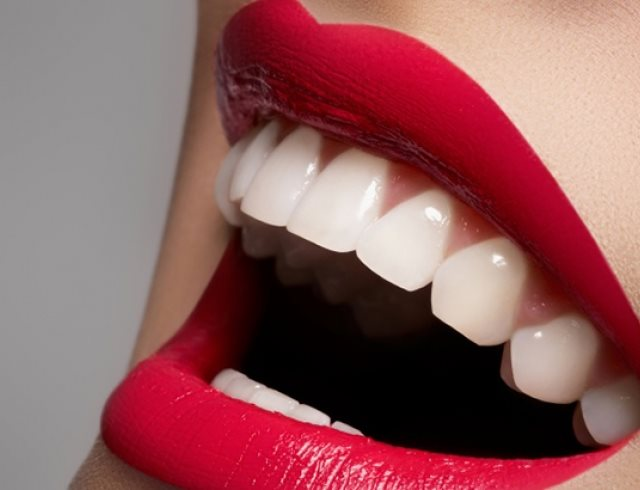 Отбеливание зубов в бобруйске